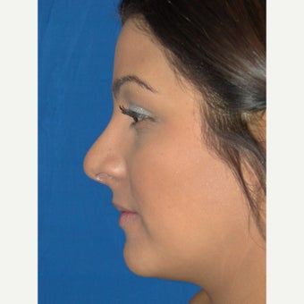 24 year old woman treated with Rhinoplasty after 2112998