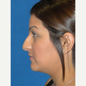 24 year old woman treated with Rhinoplasty before 2112998