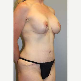 35-44 year old woman treated with Mommy Makeover after 3588671