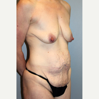 35-44 year old woman treated with Mommy Makeover before 3588671