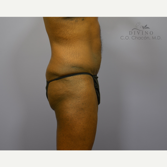 45-54 year old man treated with Male Tummy Tuck after 3421547