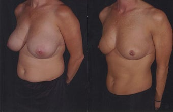 Breast Reduction before 724684