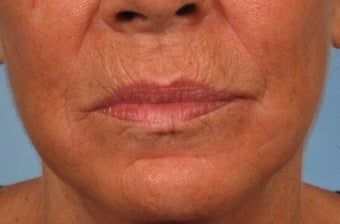 55 year old woman with severe sun damage and wrinkles treated with a Croton Oil/Phenol Peel