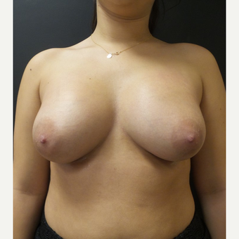 25-34 year old woman treated with Breast Augmentation after 3566214