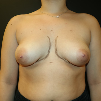 25-34 year old woman treated with Breast Augmentation before 3566214