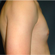 15 year old man treated with Male Breast Reduction after 3720932
