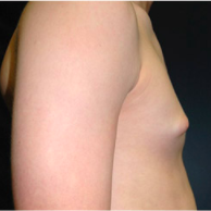 15 year old man treated with Male Breast Reduction before 3720932
