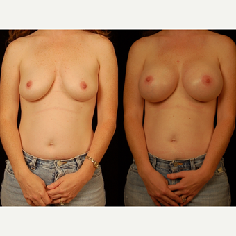25-34 year old woman treated with Breast Augmentation before 3658585