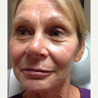 55-64 year old woman treated with Voluma after 3500523