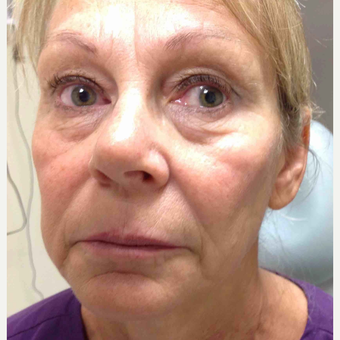 55-64 year old woman treated with Voluma before 3500523