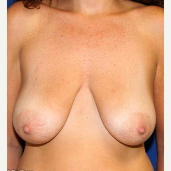25-34 year old woman treated with Breast Lift before 3037523