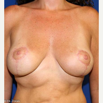 25-34 year old woman treated with Breast Lift after 3037523