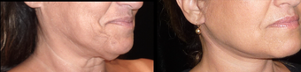 45-54 year old woman treated with Neck Lift before 3372496