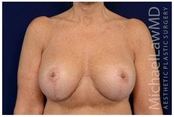Breast Implants after 1516993