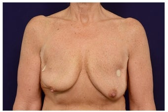 Breast Implants before 1516993