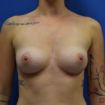 18-24 year old woman treated with Breast Augmentation who desired a full natural look before 3530611