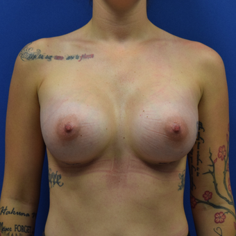 18-24 year old woman treated with Breast Augmentation who desired a full natural look after 3530611