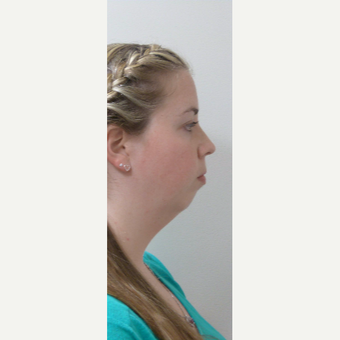 25-34 year old woman treated with Neck Lift before 3042867