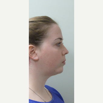 25-34 year old woman treated with Neck Lift after 3042867