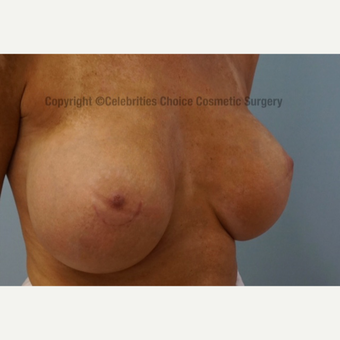 25-34 year old woman treated with Breast Implants after 3358486