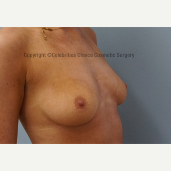 25-34 year old woman treated with Breast Implants before 3358486