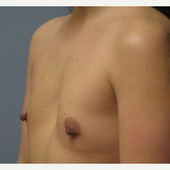 25-34 year old woman treated with Breast Augmentation before 3538888