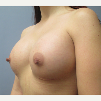 25-34 year old woman treated with Breast Augmentation after 3538888