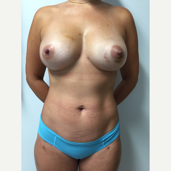 30 year old woman treated with Breast Fat Transfer (450cc each breast) after 3133877
