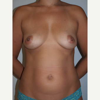 30 year old woman treated with Breast Fat Transfer (450cc each breast) before 3133877