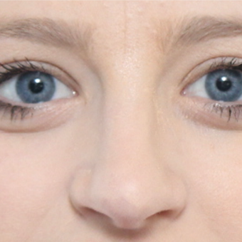 18-24 year old woman treated with Rhinoplasty after 3566054