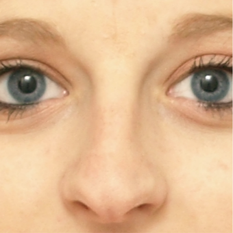 18-24 year old woman treated with Rhinoplasty before 3566054