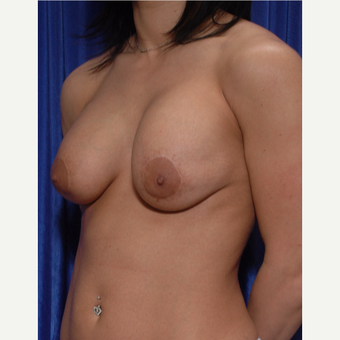 25-34 year old woman treated with Breast Implant Revision , lift revision and fat grafting before 3318965