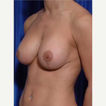 25-34 year old woman treated with Breast Implant Revision , lift revision and fat grafting after 3318965