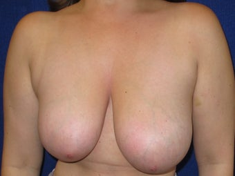 37 year old female with a limited scar breast reduction