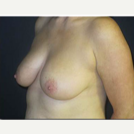 25-34 year old woman treated with Breast Lift before 2988127