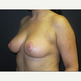 25-34 year old woman treated with Breast Lift after 2988127