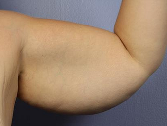 25-34 year old woman treated with Arm Lift before 1679043