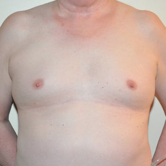 65 year old Transgender female treated with breast augmentation. before 1882126