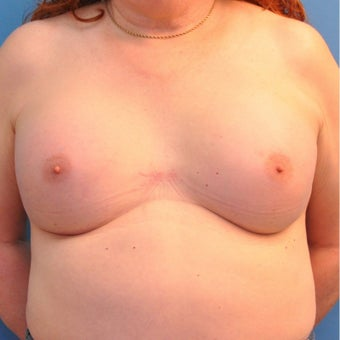 65 year old Transgender female treated with breast augmentation. after 1882126