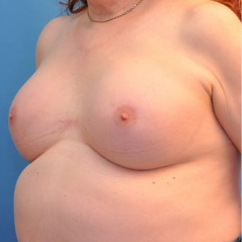 65 year old Transgender female treated with breast augmentation. 1882126