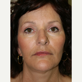 55-64 year old woman treated with Facelift after 3142061