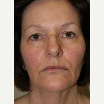 55-64 year old woman treated with Facelift before 3142061