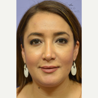 35-44 year old woman treated with Cheek Augmentation after 3392082