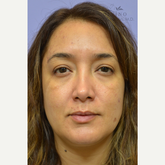 35-44 year old woman treated with Cheek Augmentation before 3392082