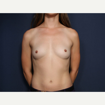 25-34 year old woman treated with Breast Augmentation (view 1 of 2) before 3304886