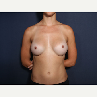 25-34 year old woman treated with Breast Augmentation (view 1 of 2) after 3304886