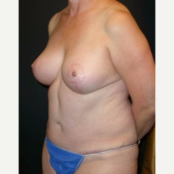 55-64 year old woman treated with Mommy Makeover after 3434642