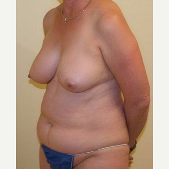55-64 year old woman treated with Mommy Makeover before 3434642