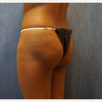 35-44 year old woman treated with Brazilian Butt Lift before 3683833