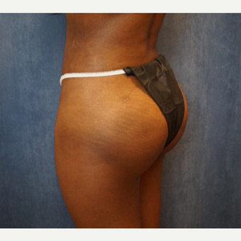 35-44 year old woman treated with Brazilian Butt Lift after 3683833